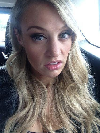 Carley Shimkus Botox Nose Job Lips Plastic Surgery Rumors