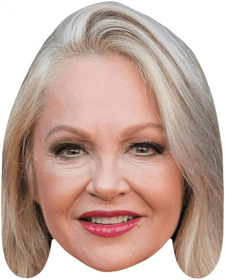 Charlene Tilton Botox Nose Job Lips Plastic Surgery Rumors