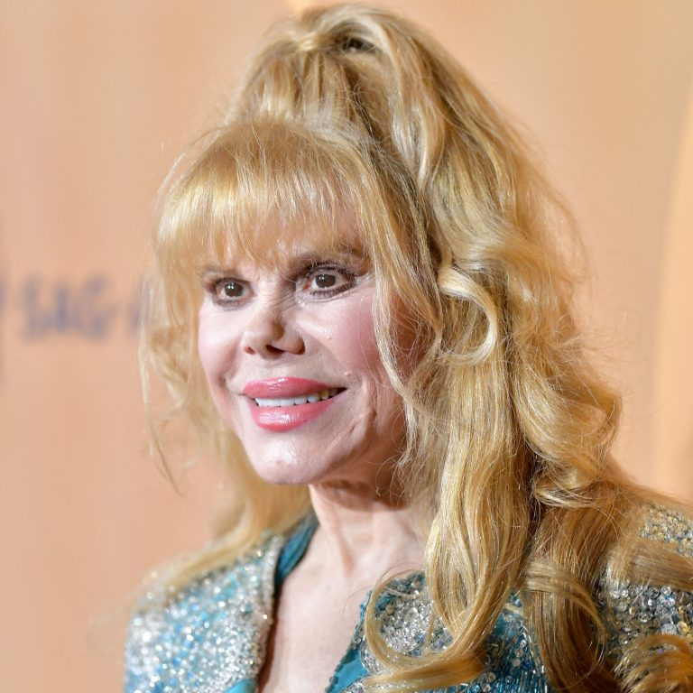 Charo Botox Nose Job Lips Plastic Surgery Rumors