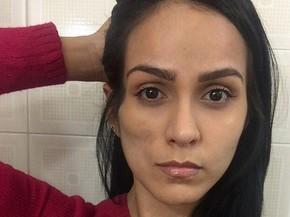 Dai Macedo Botox Nose Job Lips Plastic Surgery Rumors