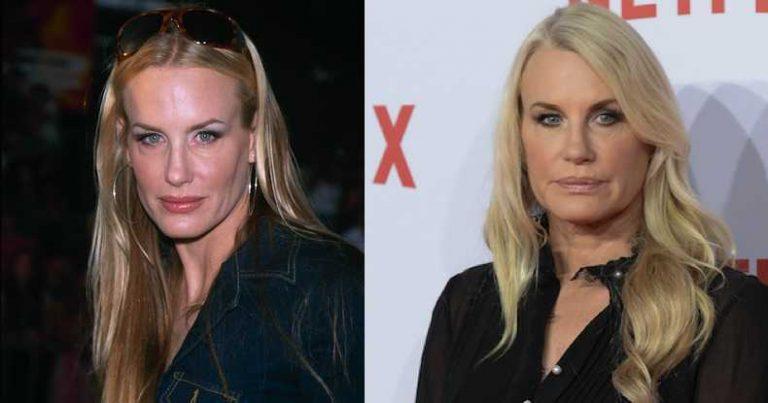 Daryl Hannah Botox Nose Job Lips Plastic Surgery Rumors