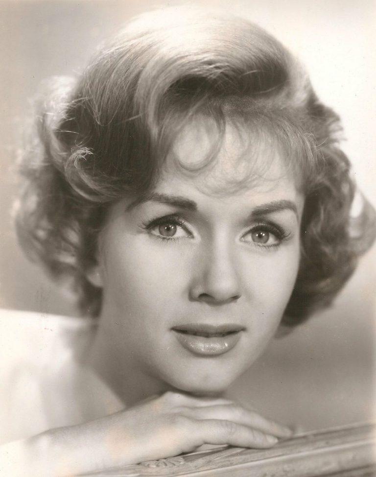 Debbie Reynolds Botox Nose Job Lips Plastic Surgery Rumors