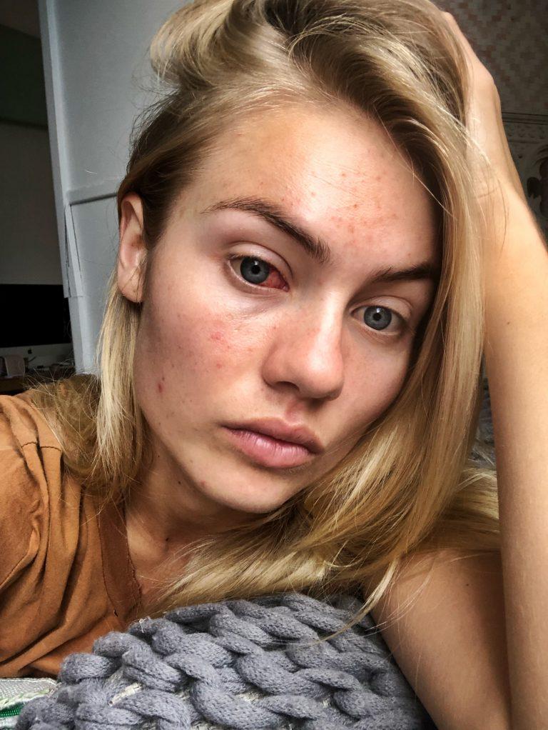 Elyse Knowles Botox Nose Job Lips Plastic Surgery Rumors