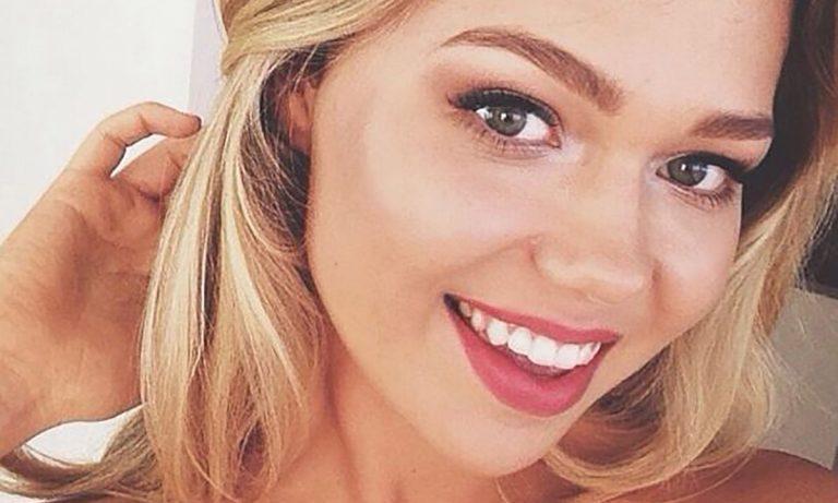 Essena O'Neill Botox Nose Job Lips Plastic Surgery Rumors