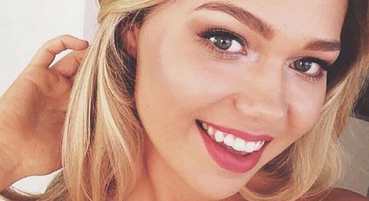Essena O'Neill Plastic Surgery Nose Job Boob Job Botox Lips