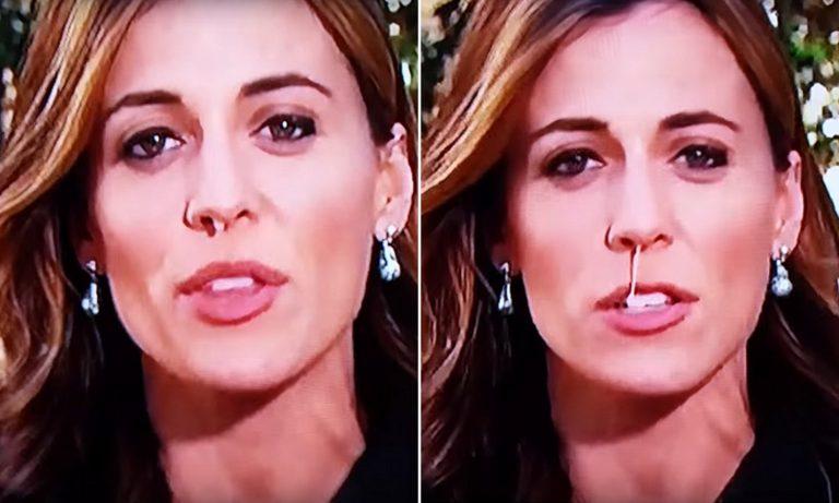 Hallie Jackson Botox Nose Job Lips Plastic Surgery Rumors