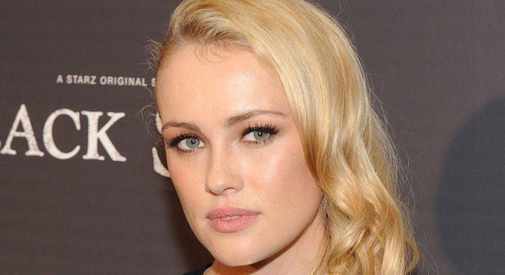 Hannah New Plastic Surgery Nose Job Boob Job Botox Lips