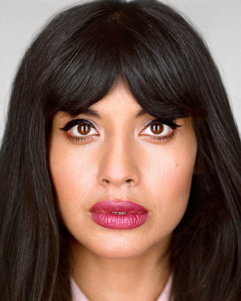 Jameela Jamil Botox Nose Job Lips Plastic Surgery Rumors