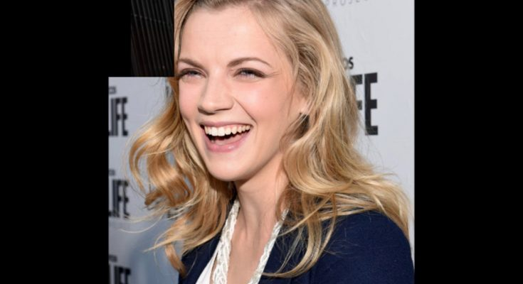 Kara Killmer Plastic Surgery Nose Job Boob Job Botox Lips