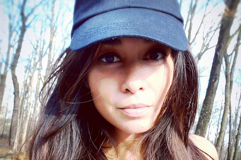 Katie Rost Botox Nose Job Lips Plastic Surgery Rumors