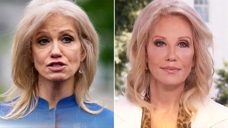 Kellyanne Conway Botox Nose Job Lips Plastic Surgery Rumors