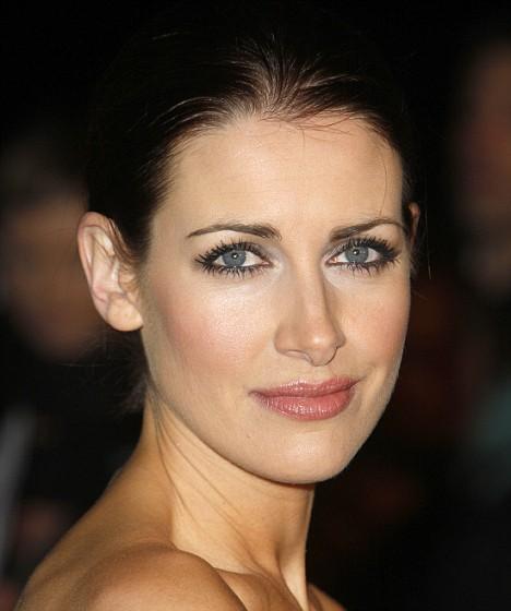 Kirsty Gallacher Botox Nose Job Lips Plastic Surgery Rumors