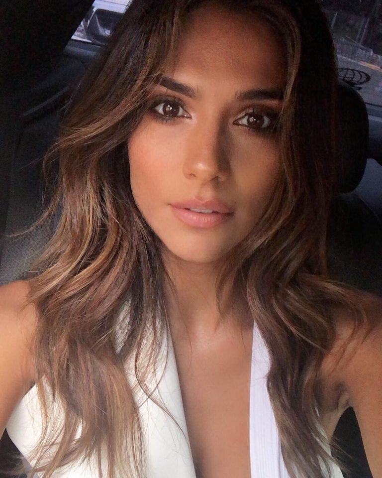 Kristin Fisher Botox Nose Job Lips Plastic Surgery Rumors