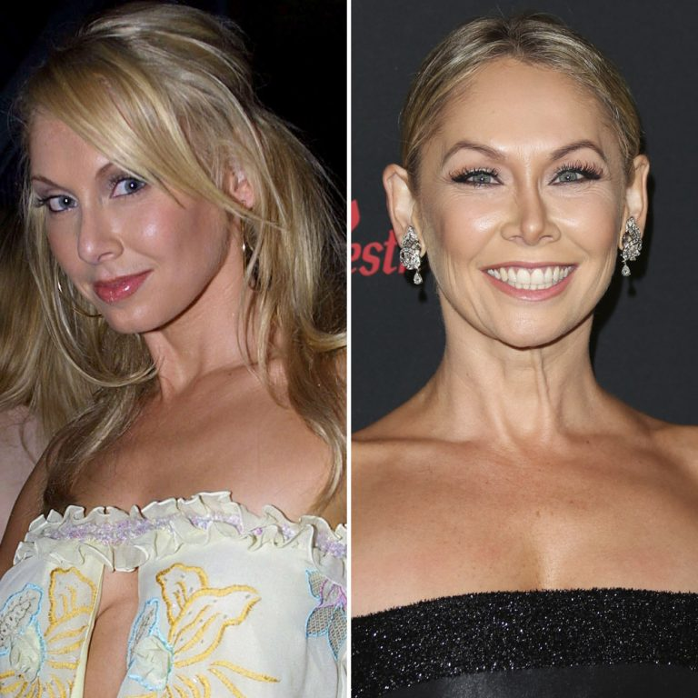 Kym Johnson Botox Nose Job Lips Plastic Surgery Rumors