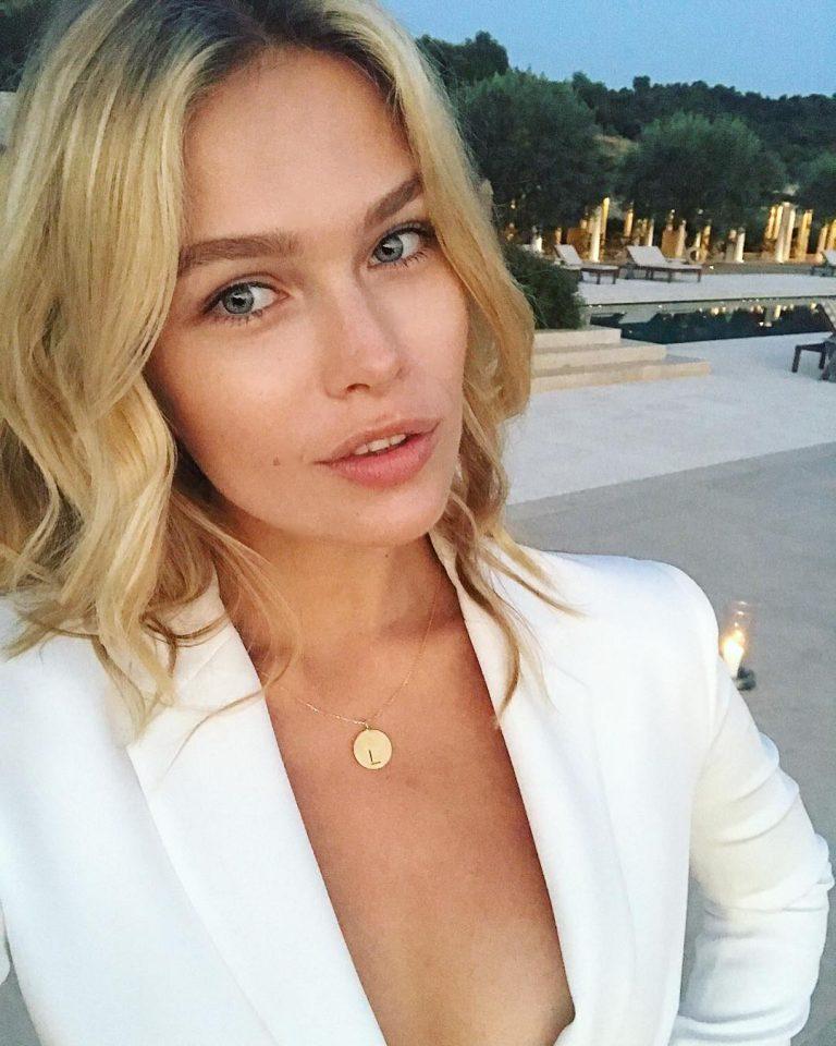 Lada Kravchenko Botox Nose Job Lips Plastic Surgery Rumors