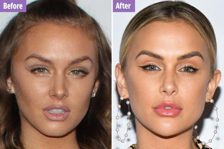 Lala Kent Botox Nose Job Lips Plastic Surgery Rumors
