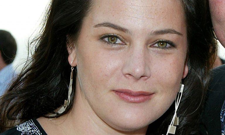 Liza Snyder Botox Nose Job Lips Plastic Surgery Rumors