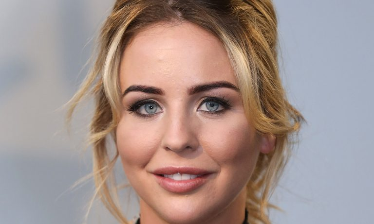 Lydia Bright Botox Nose Job Lips Plastic Surgery Rumors