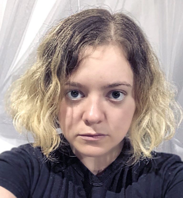Madylin Sweeten Botox Nose Job Lips Plastic Surgery Rumors