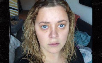 Madylin Sweeten Plastic Surgery Nose Job Boob Job Botox Lips