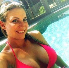 Meghan Hardin Botox Nose Job Lips Plastic Surgery Rumors