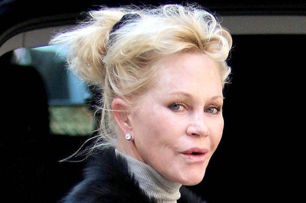 Melanie Griffith Botox Nose Job Lips Plastic Surgery Rumors