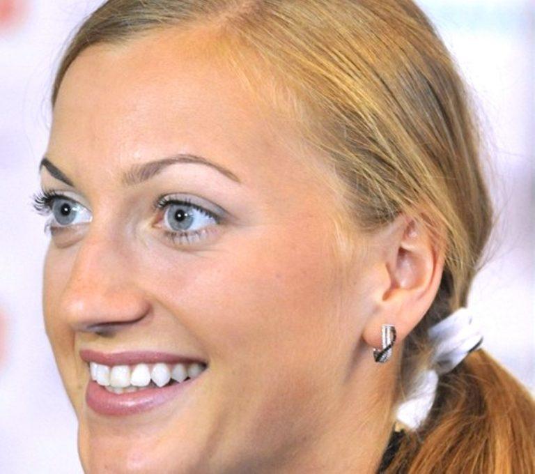Petra Kvitova Botox Nose Job Lips Plastic Surgery Rumors