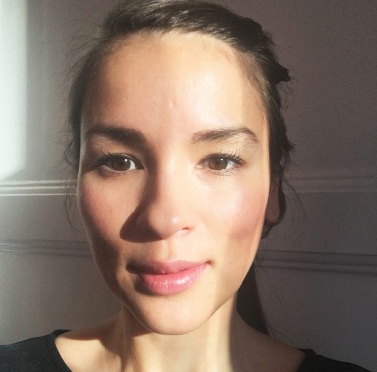 Rachel Khoo Botox Nose Job Lips Plastic Surgery Rumors
