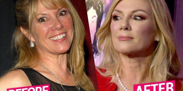 Ramona Singer Botox Nose Job Lips Plastic Surgery Rumors