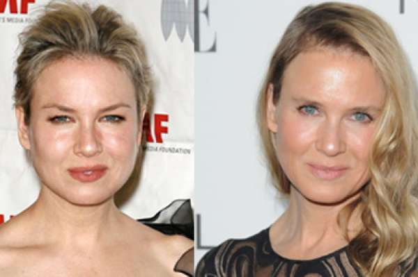 Renée Zellweger Botox Nose Job Lips Plastic Surgery Rumors