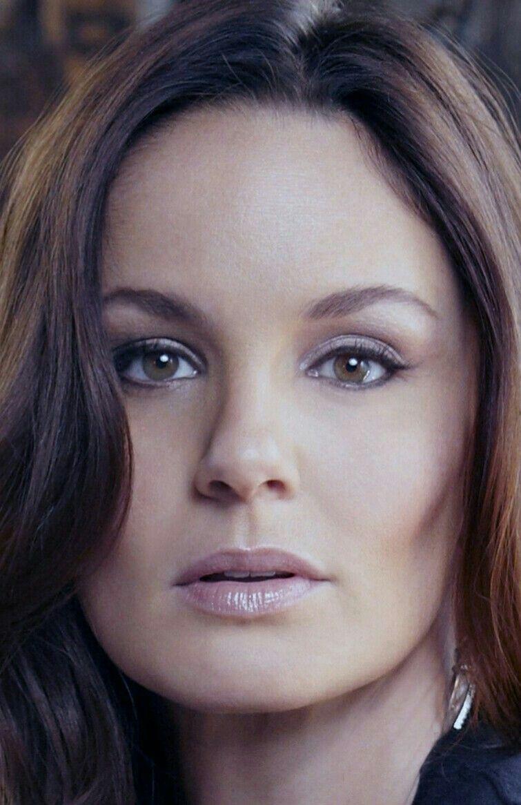 Sarah Wayne Callies Botox Nose Job Lips Plastic Surgery Rumors