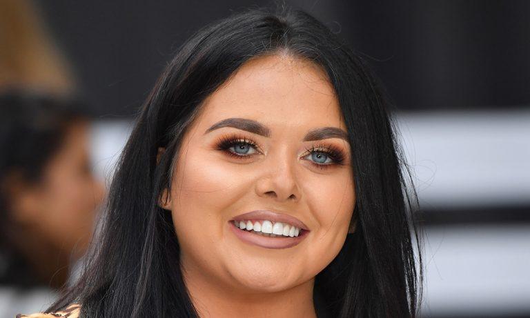 Scarlett Moffatt Botox Nose Job Lips Plastic Surgery Rumors