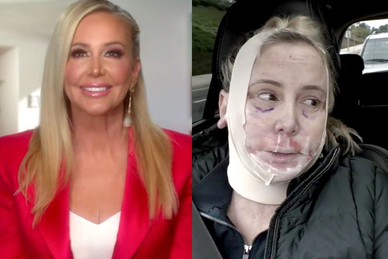 Shannon Beador Botox Nose Job Lips Plastic Surgery Rumors