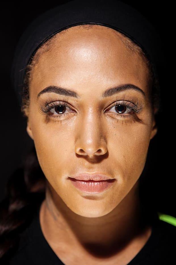 Sydney Leroux Botox Nose Job Lips Plastic Surgery Rumors