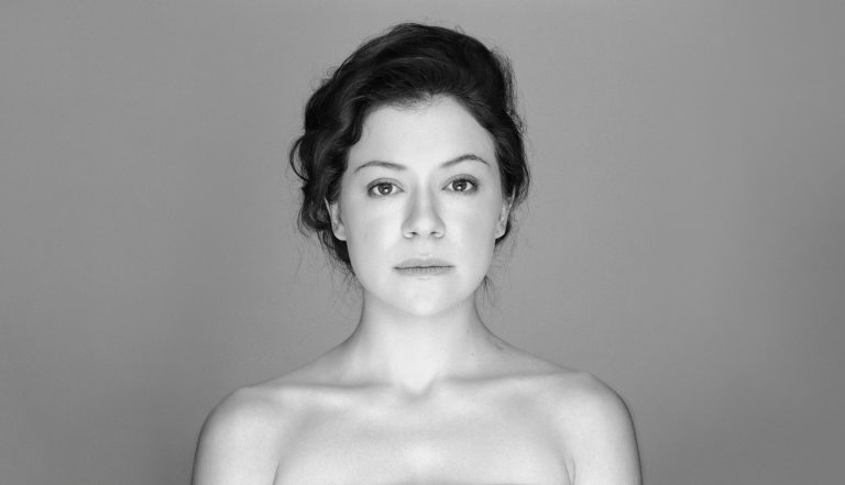 Tatiana Maslany Botox Nose Job Lips Plastic Surgery Rumors