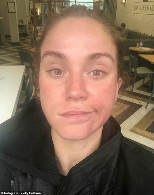 Vicky Pattison Botox Nose Job Lips Plastic Surgery Rumors